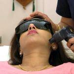 Лазерная технология удаления волос на лице