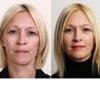Омоложение лица после 40 лет